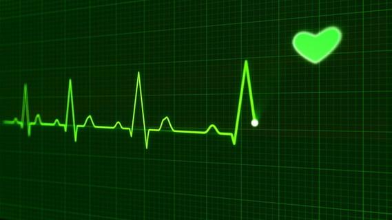 緊張からドキドキと波打つ心電図